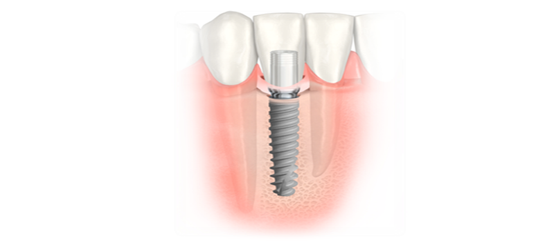 east-valley-implant-dental-implants-on-bottom-tooth.png