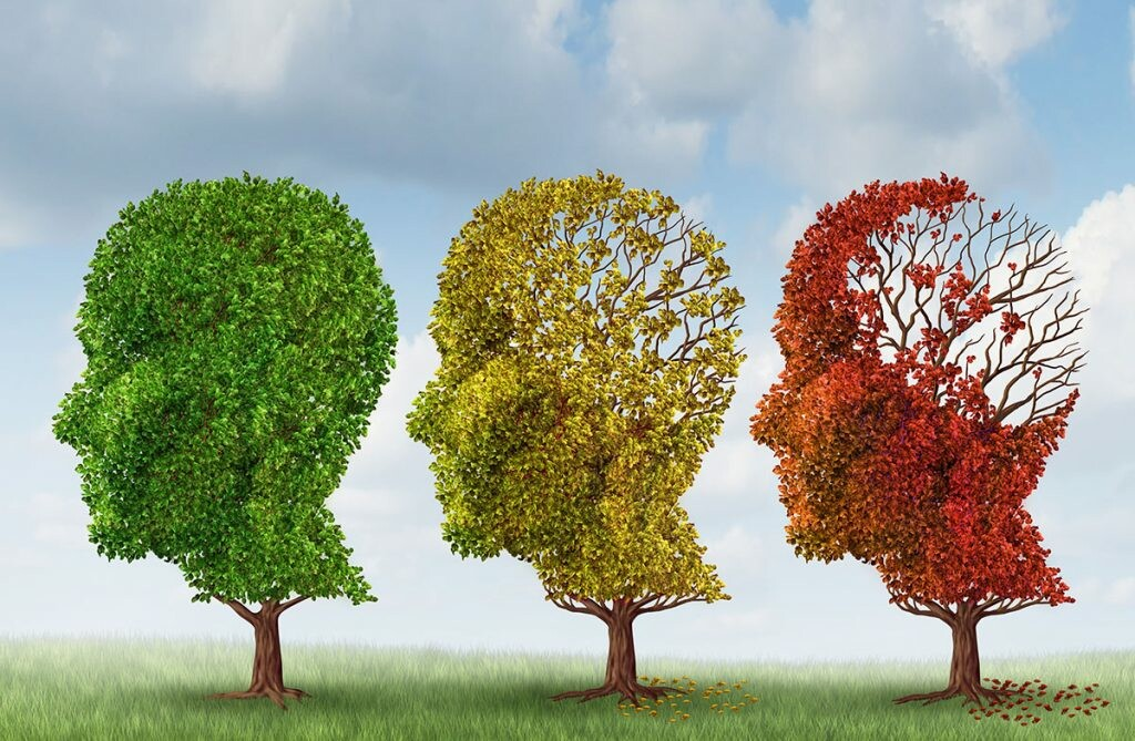 three-stages-of-alzheimers-disease-1024x669.jpg