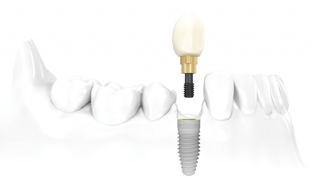 dental-implant-nobelbiocare.jpg